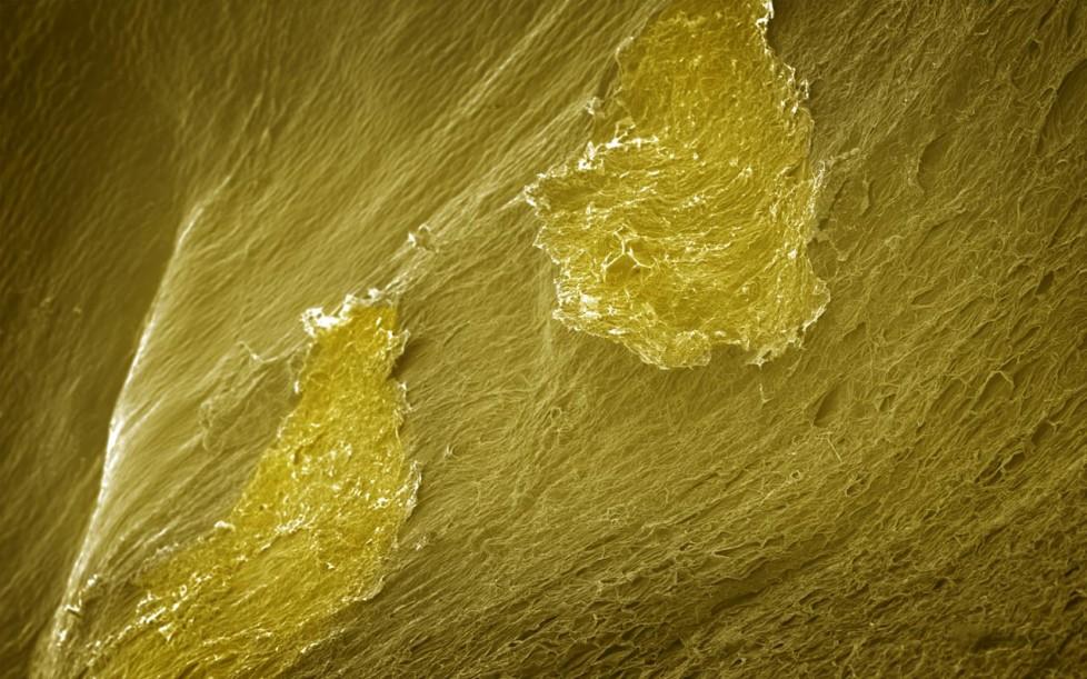Як виглядає їжа під мікроскопом